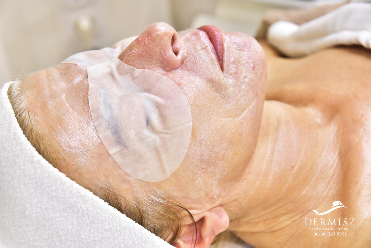 Alissa botox kezelés szemre